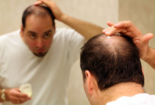 Hair Loss Specialist in Calicut